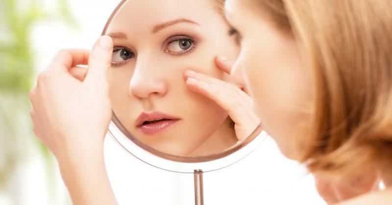 Prírodné spôsoby ako odstrániť akné, fľaky a jazvy na tvári
