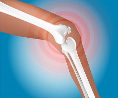 Artritída a reuma - 12 tipov prírodnej medicíny