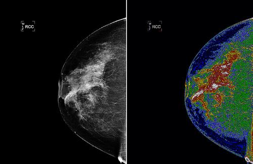 vysetrenie prsnika a rakovina
