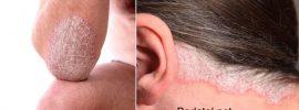Psoriáza: 8 najčastejších príčin a účinné spôsoby liečby