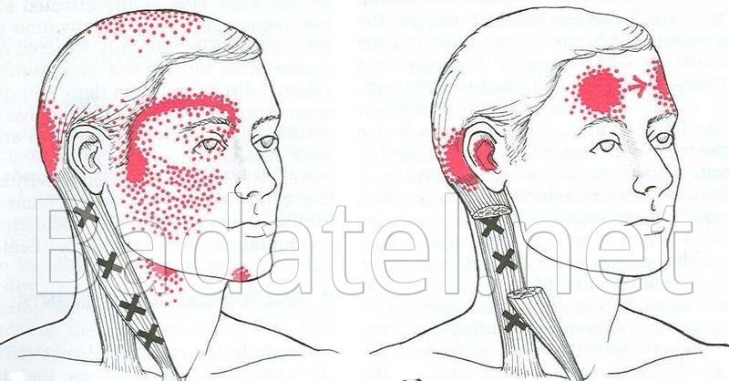 bolesti-hlav