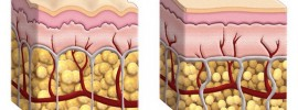 Skutočnou príčinou celulitídy sú zápaly, nie tuk. Vyliečite ju takto