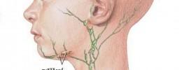 Ako prírodne liečiť chronicky zväčšené lymfatické uzliny