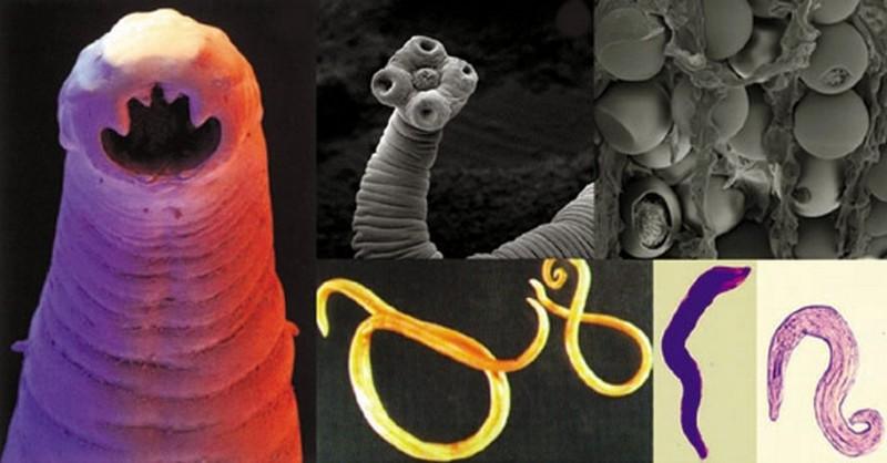 parazity u ľudí