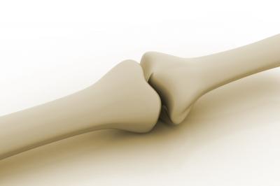 Osteoporóza a fakty o nej, ktoré vám lekár nepovie