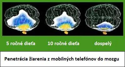 penetrácia radiáce do mozgu