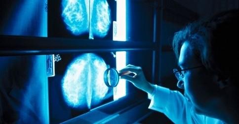 rakovina prsníka - diagnóza