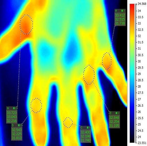 vyšetrenie ruky termokamerou