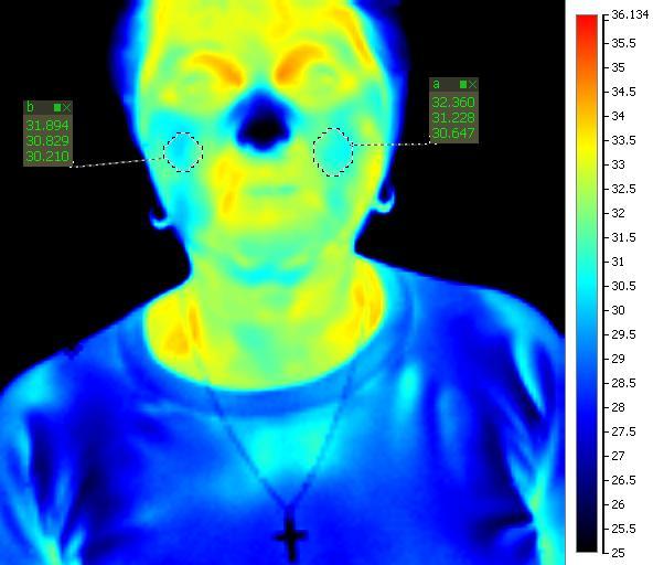 termokamera po terapii
