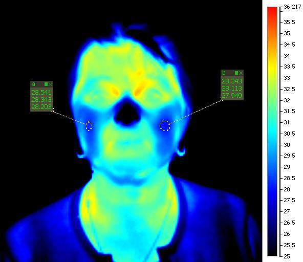 termokamera pred terapiou