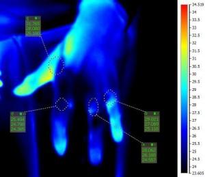 snímok termálnou kamerou po liečbe NO
