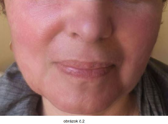 tvár po terapii