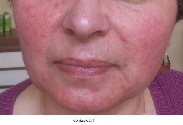 tvár pred terapiou