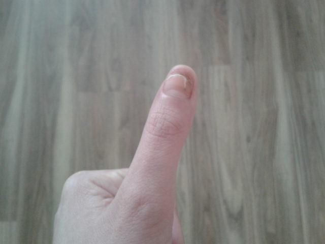 vyliečený palec