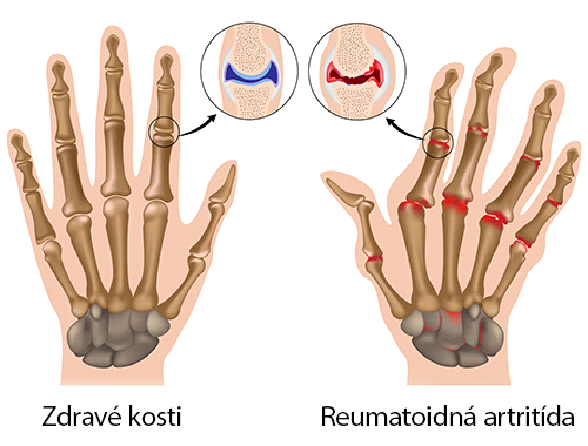 Porovnanie zdravej ruky a ruky s reumou