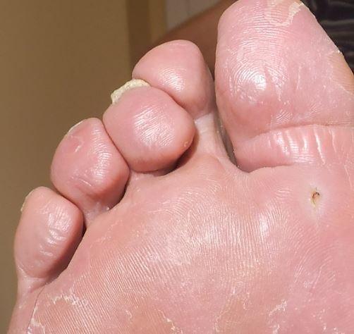 noha cukrovkára počas liečby