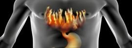 15 prírodných terapií na pálenie záhy (reflux) a žalúdočné vredy
