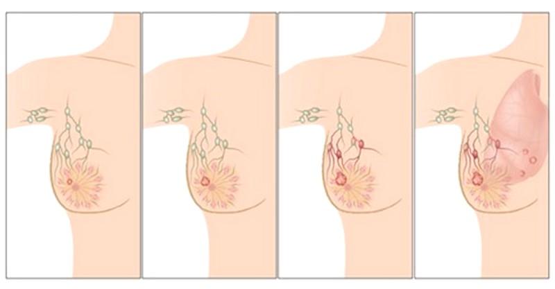 O tomto musíte vedieť: Primárne príčiny rakoviny prsníka