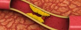 Prírodná látka, ktorá vám zníži hladinu zlého cholesterolu