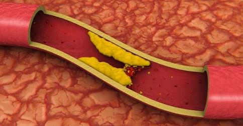 cholesterol v cievach