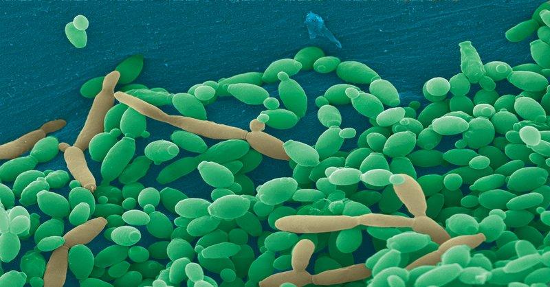 kvasinkové infekcie