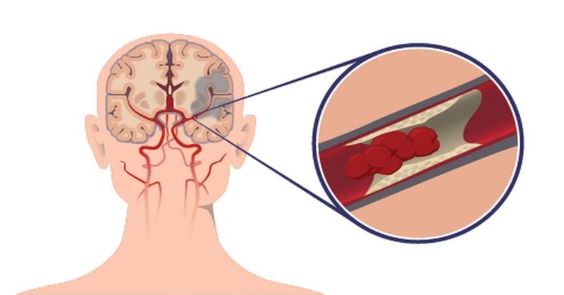 prevencia mozgovej mŕtvice