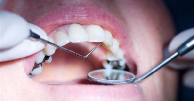 Citlive zuby po vrtani