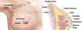 Ako nedostať rakovinu prsníka? Táto potravina zníži riziko až o 14%