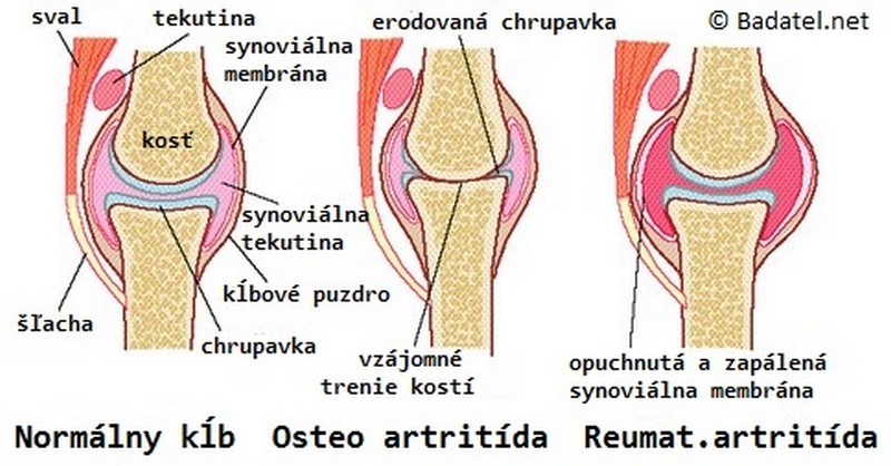 bolesti pri reume a artritíde