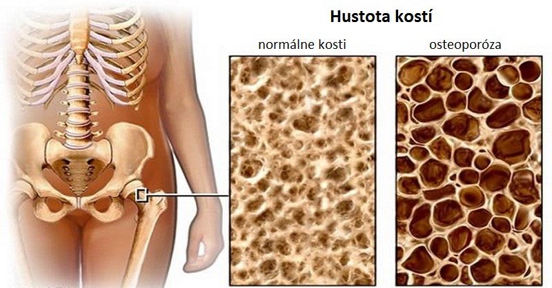 potraviny na osteoporózu