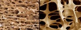 Zaručený spôsob ako nedostať osteoporózu (či dokonca ju vyliečiť)