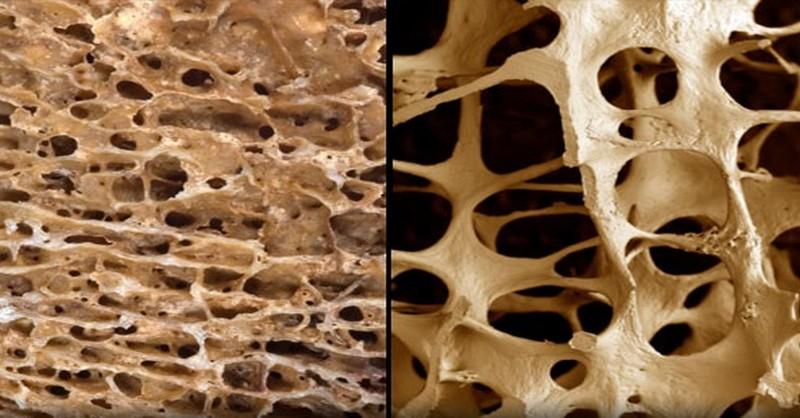 osteoporoza-prevencia-liecba