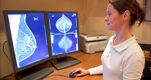 rakovina prsnika