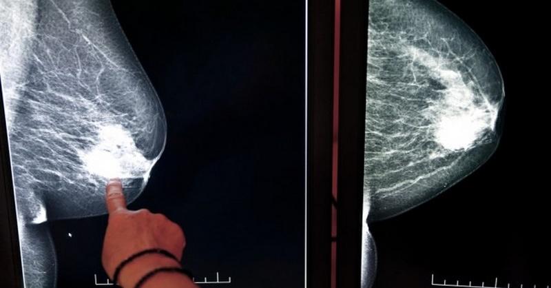 rakovina prsníka a generické lieky