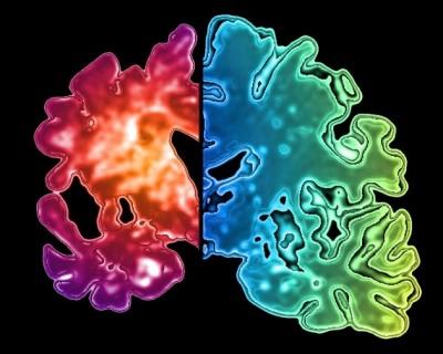alzheimer-vyliecenie