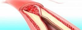 Jedno ovocie čistí artérie lepšie než všetky lieky na cholesterol