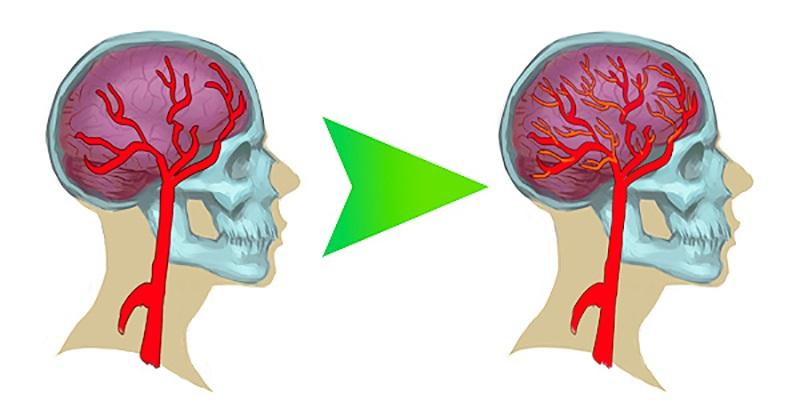 zvýšenie mentálnej kapacity
