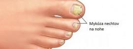 3 ľahké spôsoby liečby mykózy nechtov a kože u mužov aj žien