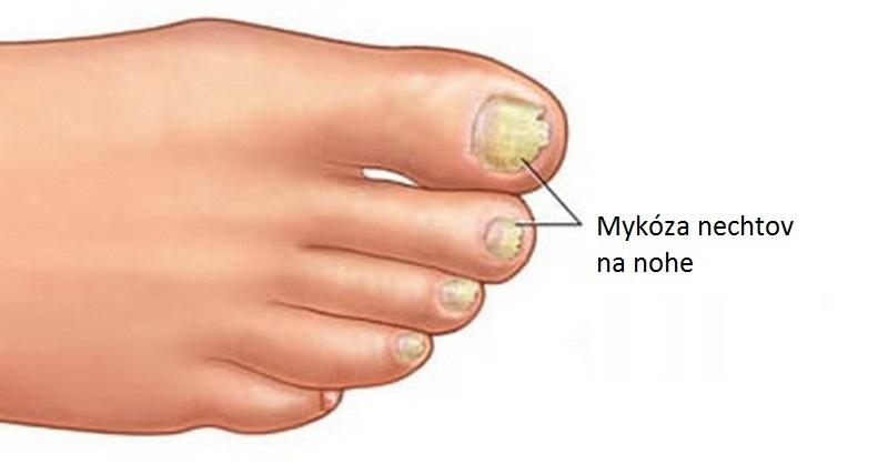 mykóza nechtov na nohe