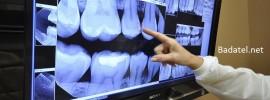 Prečo pri zubnej prehliadke nikdy nesúhlaste s röntgenom zubov