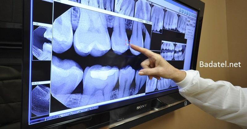 rontgen-zubov