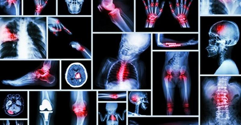 20 zdrojov bolesti