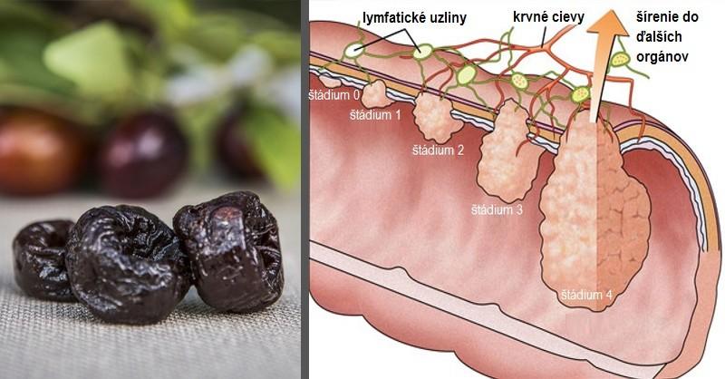 ovocie na prevenciu rakoviny hrubého čreva