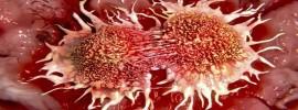 Prečo sa to tají? 10 príčin rakoviny, ktoré denne používate