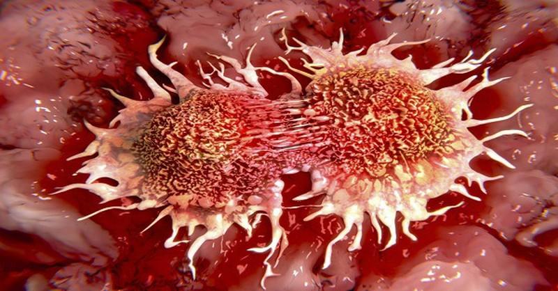 príčiny rakoviny