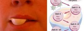Ako rýchlo vyliečiť herpes či opar na perách: 12 skvelých receptov