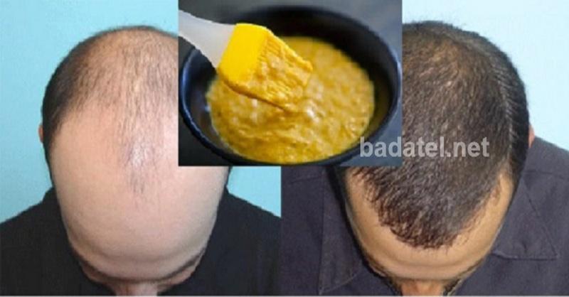 maska-rast-vlasov