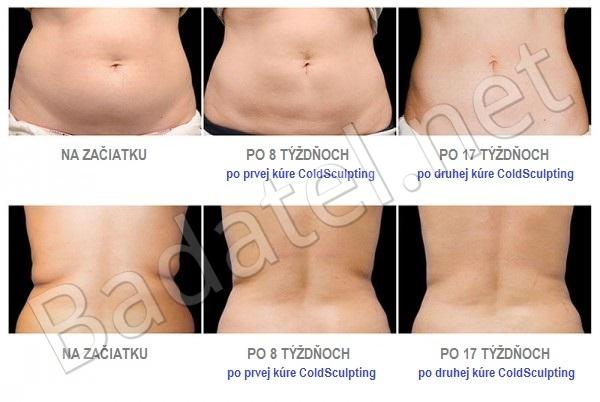 ako-schudnut-5