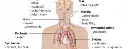 Obávaná infekčná mononukleóza: Prenos, príznaky a prírodná liečba