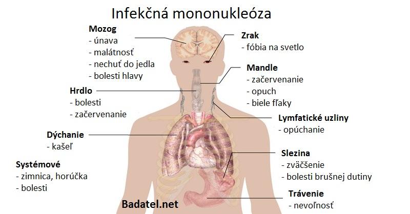 infekcna-mononukleoza